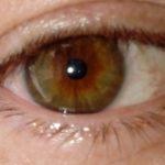 Oční duhovka a nemoci